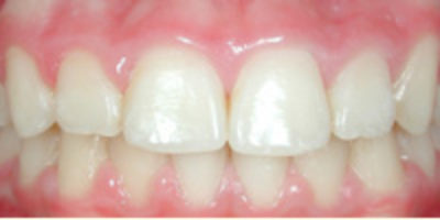 L'affollamento dentale - dopo