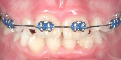 I denti inferiori sporgenti - dopo