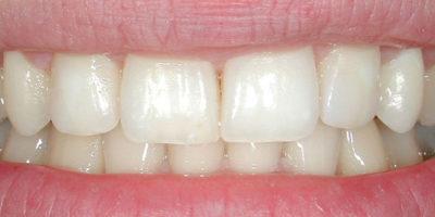 Gli spazi tra i denti - dopo
