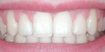 I denti superiori sporgenti - dopo